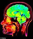 Суперкомпьютер, имитирующий головной мозг целиком, поможет побороть болезни