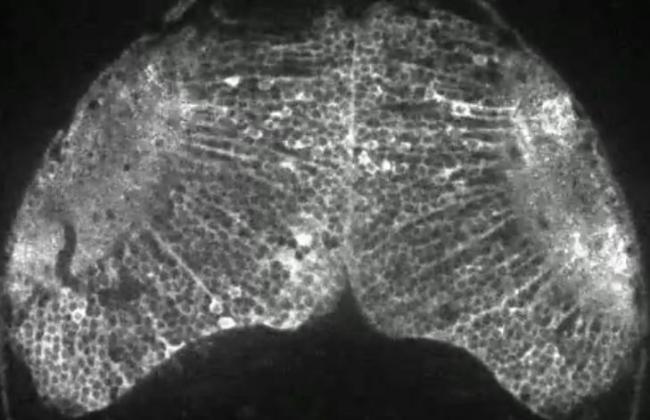 Как зарождается мысль в мозге (+Видео)