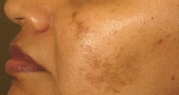 Как избавиться от пятен на лице и гиперпигментации?