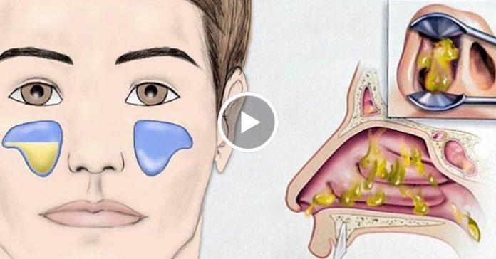 Есть проверенный рецепт от гайморита, помогает на 100% (+Видео)