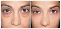 У вас мешки под глазами? Используйте пищевую соду, эффект НЕВЕРОЯТНЫЙ