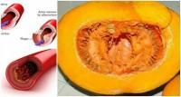 Прощай холестерин, глюкоза в крови, липиды и триглицериды!
