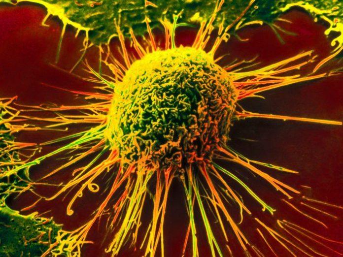 Olanda a recunoscut alimentația crudivoră drept metodă oficială de tratament al cancerului!