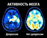 Ученые изучили мозг и нашли рецепт Счастья!