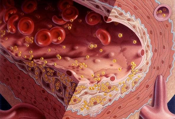 Как быстро и эффективно понизить уровень холестерина?